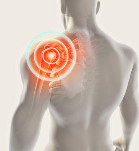 frozen shoulder impingement schouderpijn artrose pijn pijnvrijmethode fysiotherapie osteopathie